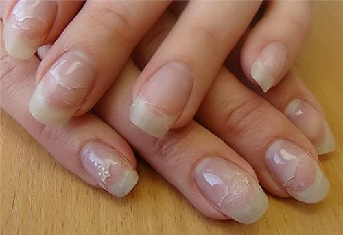Гелевые ногти почему отслаиваются